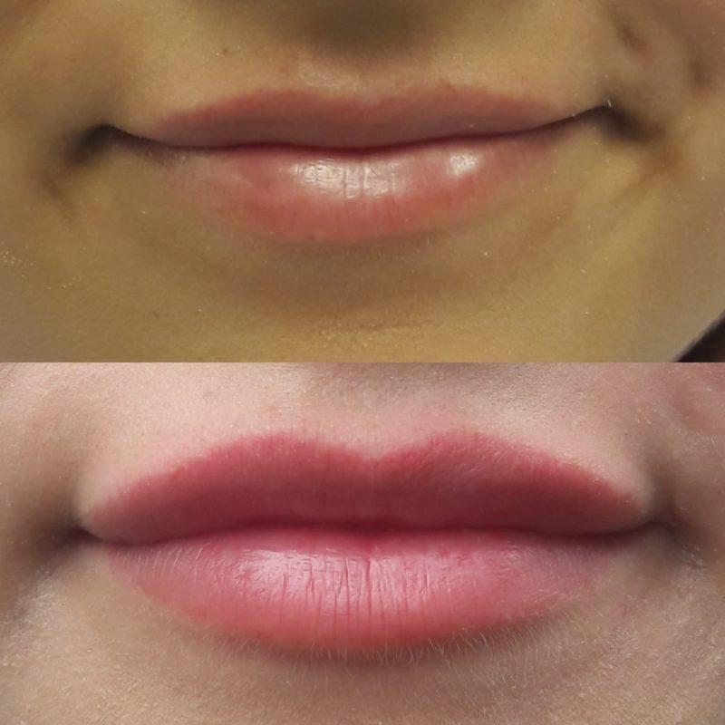 Makijaż permanentny ust (rok po zabiegu)