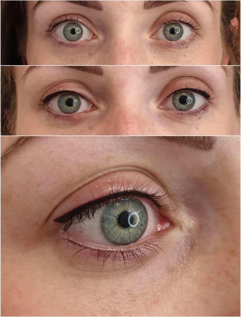 Kreski na powiekach bezpośrednio po zabiegu