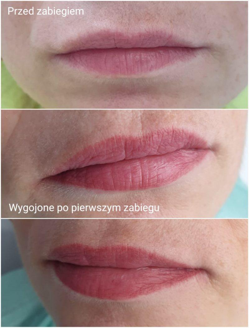 Wygojone usta po pierwszym z dwóch zabiegów