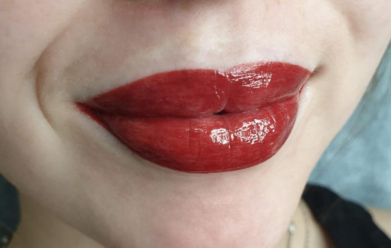 Usta bezpośrednio po zabiegu